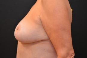 After Photo - Breast Reduction - Case #10980 - Lateral View