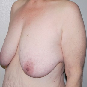 Before Photo - Breast Lift - Case #11012 - Full Mastopexy - Oblique View
