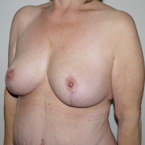 After Photo - Breast Lift - Case #11012 - Full Mastopexy - Oblique View