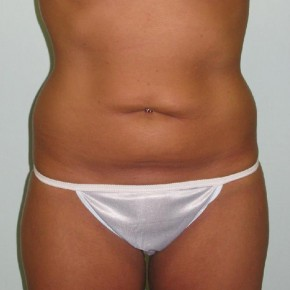 Before Photo - Tummy Tuck - Case #11018 - Tummy Tuck after Weight Loss - Frontal View