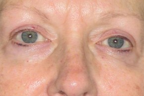 After Photo - Eyelid Surgery - Case #11021 - Upper lids - Frontal View