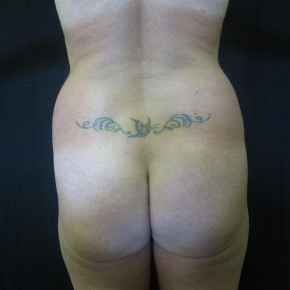 Before Photo - Buttock Lift - Case #11026 - Fat transfer to Buttocks - Posterior View