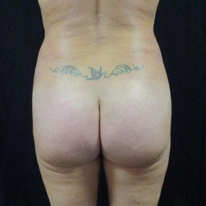 After Photo - Buttock Lift - Case #11026 - Fat transfer to Buttocks - Posterior View