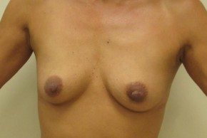 Before Photo - Breast Augmentation - Case #11028 - Breast Augmentation (42 years old) - Frontal View