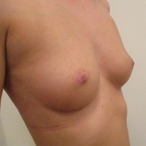 Before Photo - Breast Augmentation - Case #11029 - Breast Augmentation (32 year old) - Oblique View