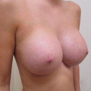 After Photo - Breast Augmentation - Case #11029 - Breast Augmentation (32 year old) - Oblique View