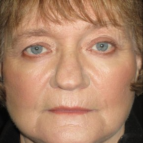 After Photo - Chemical Peel - Case #11031 - Chemical Peel - lower lids - Frontal View