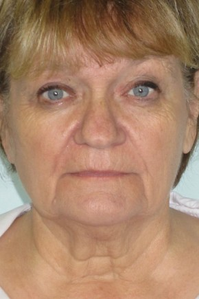 Before Photo - Facial Rejuvenation - Case #11034 - 63 Year Old Woman's Facial Rejuvenation - Frontal View