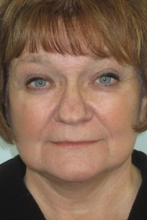 After Photo - Facial Rejuvenation - Case #11034 - 63 Year Old Woman's Facial Rejuvenation - Frontal View