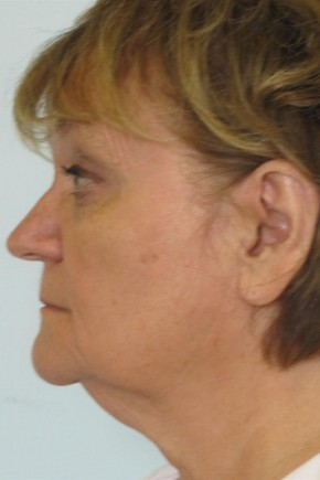 Before Photo - Facial Rejuvenation - Case #11034 - 63 Year Old Woman's Facial Rejuvenation - Oblique View