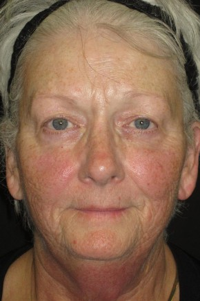 Before Photo - Facial Rejuvenation - Case #11035 - 67 Year Old Woman's Facial Rejuvenation - Frontal View