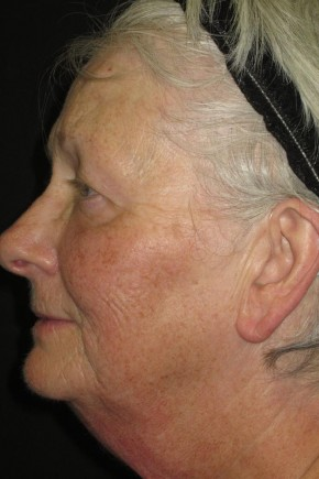 Before Photo - Facial Rejuvenation - Case #11035 - 67 Year Old Woman's Facial Rejuvenation - Oblique View
