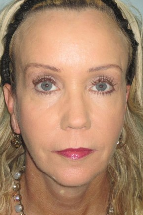 After Photo - Facial Rejuvenation - Case #11036 - 47 Year Old Woman's facial rejuvenation - Frontal View