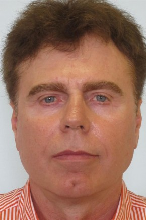 After Photo - Facial Rejuvenation - Case #11037 - 65 Year Old Male Facial Rejuvenation - Frontal View