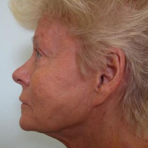 Before Photo - Facial Rejuvenation - Case #11039 - 71 Year Old Women's Facial Rejuvenation - Oblique View