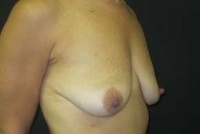 Before Photo - Breast Lift - Case #11050 - Breast Lift with Augmentation (51 years old) - Oblique View
