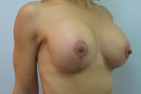 After Photo - Breast Lift - Case #11050 - Breast Lift with Augmentation (51 years old) - Oblique View