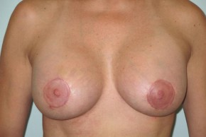 After Photo - Breast Lift - Case #11051 - Mastopexy (periareolar) with augmentation - Frontal View