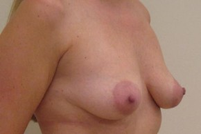Before Photo - Breast Lift - Case #11051 - Mastopexy (periareolar) with augmentation - Oblique View