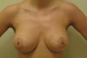 After Photo - Breast Lift - Case #11052 - Mastopexy (crescent) with augmentation - Frontal View