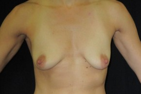 Before Photo - Breast Lift - Case #11053 - Mastopexy (periareolar) with augmentation - Frontal View