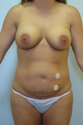 Before Photo - Mommy Makeover - Case #11054 - Abdominoplasty & Breast Lift - Frontal View