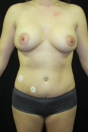 After Photo - Mommy Makeover - Case #11054 - Abdominoplasty & Breast Lift - Frontal View