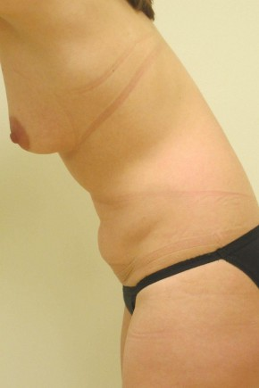 Before Photo - Mommy Makeover - Case #11055 - Abdominoplasty with Breast Augmentation - Oblique View