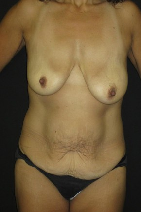 Before Photo - Mommy Makeover - Case #11056 - Abdominoplasty and Full Mastopexy - Frontal View