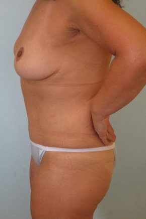 After Photo - Mommy Makeover - Case #11056 - Abdominoplasty and Full Mastopexy - Oblique View