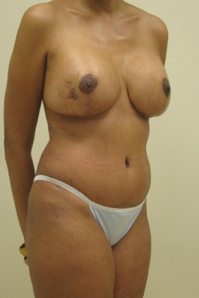 After Photo - Mommy Makeover - Case #11057 - Abdominoplasty, Mastopexy, Breast Re-Augmentation, Liposculpture - Oblique View