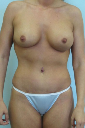 After Photo - Mommy Makeover - Case #11058 - Abdominoplasty, Mastopexy, Breast Augmentation and Liposculpture of hips after Weight Loss - Frontal View