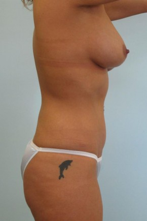 After Photo - Mommy Makeover - Case #11058 - Abdominoplasty, Mastopexy, Breast Augmentation and Liposculpture of hips after Weight Loss - Oblique View