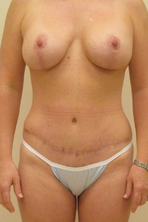After Photo - Mommy Makeover - Case #11059 - Abdominoplasty, Breast Augmentation and Mastopexy - Frontal View