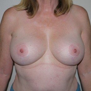 After Photo - Breast Lift - Case #11082 - Vertical Mastopexy - Frontal View