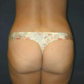 After Photo - Tummy Tuck - Case #11096 - Tummy Tuck and Liposuction of Hips - Posterior View