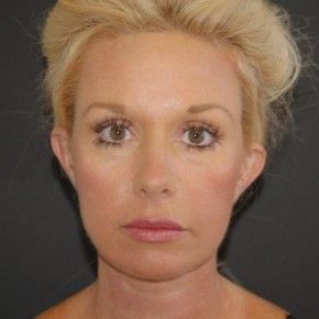 After Photo - Facial Rejuvenation - Case #11097 - Face Lift, Neck Lift, and Endoscopic Forehead Lift  - Frontal View