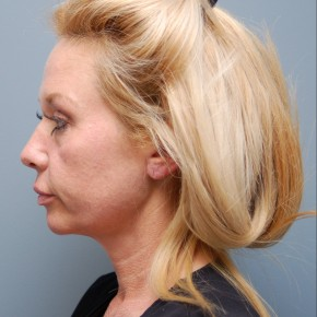 Before Photo - Facial Rejuvenation - Case #11097 - Face Lift, Neck Lift, and Endoscopic Forehead Lift  - Lateral View