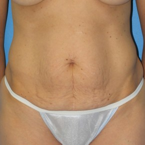 Before Photo - Tummy Tuck - Case #11109 - Abdominoplasty - Frontal View