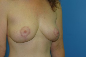After Photo - Breast Lift - Case #11114 - Lateral View