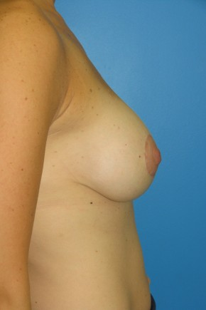 After Photo - Breast Augmentation - Case #11116 - Breast Augmentation with breast lift - Lateral View