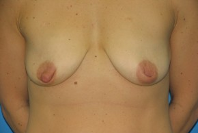 Before Photo - Breast Augmentation - Case #11116 - Breast Augmentation with breast lift - Frontal View