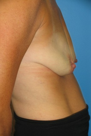 Before Photo - Breast Augmentation - Case #11117 - Breast Augmentation with breast lift - Lateral View