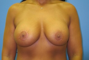 After Photo - Breast Augmentation - Case #11118 - Breast Augmentation with breast lift - Frontal View