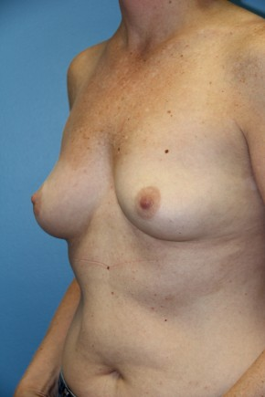 Before Photo - Breast Augmentation - Case #11119 - Lateral View