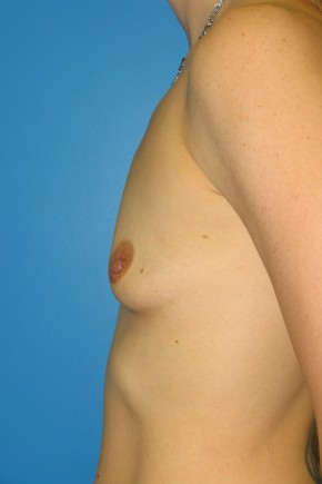 Before Photo - Breast Augmentation - Case #11120 - Lateral View