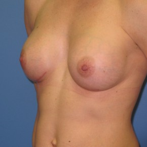 After Photo - Breast Augmentation - Case #11120 - Oblique View