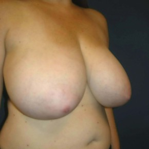 Before Photo - Breast Reduction - Case #11124 - Breast Reduction using Wise Pattern - Oblique View