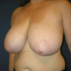 Before Photo - Breast Reduction - Case #11124 - Breast Reduction using Wise Pattern - Lateral View