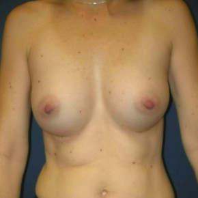 After Photo - Breast Augmentation - Case #11125 - Breast Augmentation using Memory Shape Gel Implants - Frontal View